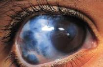 obat glaukoma